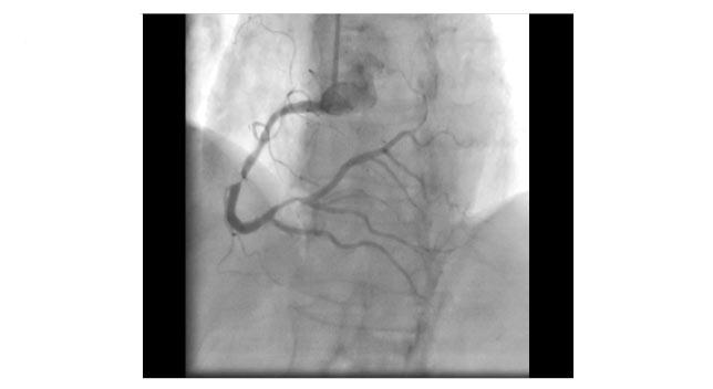 stent implantation 1